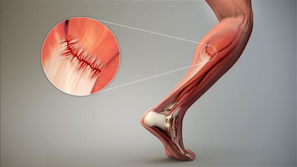 tratamiento para desgarros y dolores musculares en guayaquil
