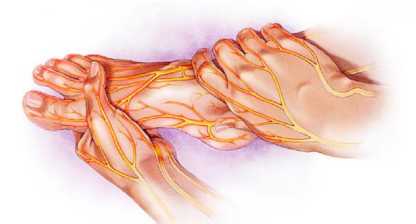 tratamientos para neuropatias en guayaquil